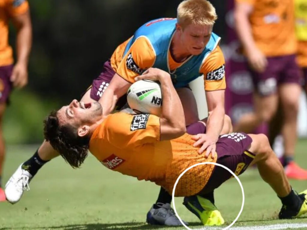 ACL knee injury - Photo credit to AAP, via news.com.au